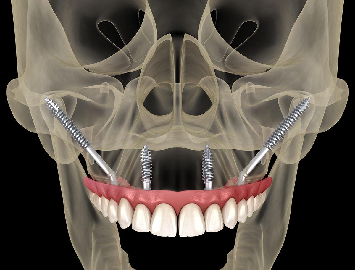 Zygoma- zigomatični implantati